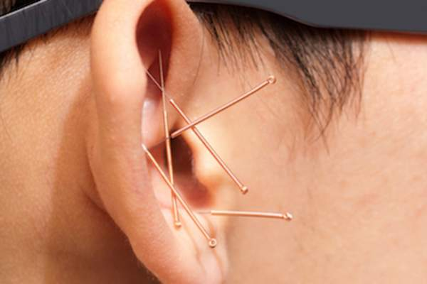 Acupuncture for smoking cessation is usually performed on ear.