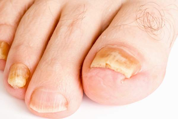 yellow toenails caused by fungus