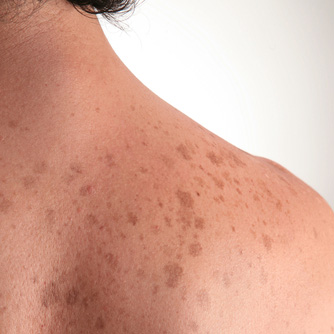 6 Things That Boost Your Skin Cancer Risk