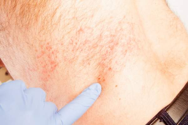 Doctor pointing to shingles outbreak on older mans back.