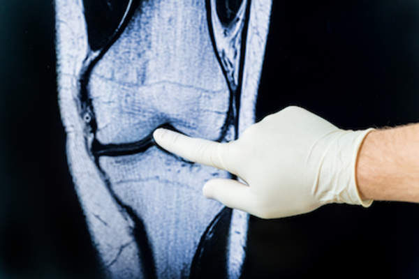 Doctor examining x-ray of knee for signs of osteoarthritis