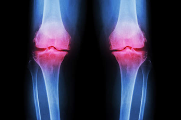 Osteoarthritis afflicted knees