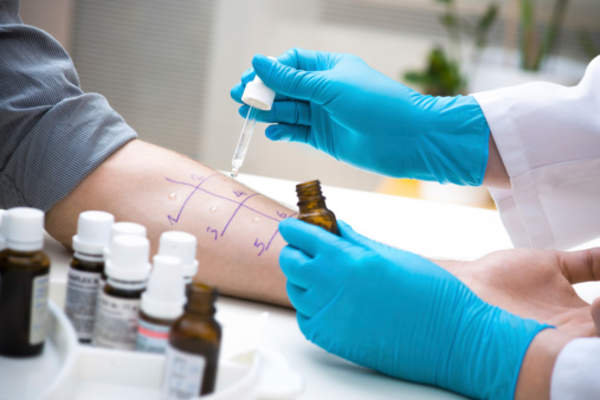 Doctor performs an allergy test on a patient.