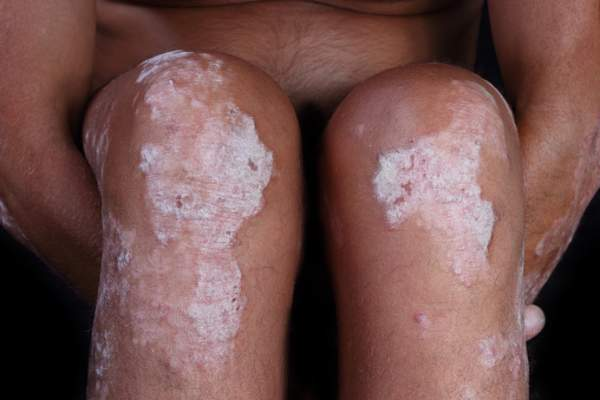 Patient with psoriasis on knees.