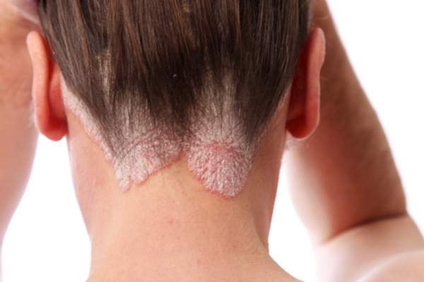 Woman experiences psoriasis on her scalp.