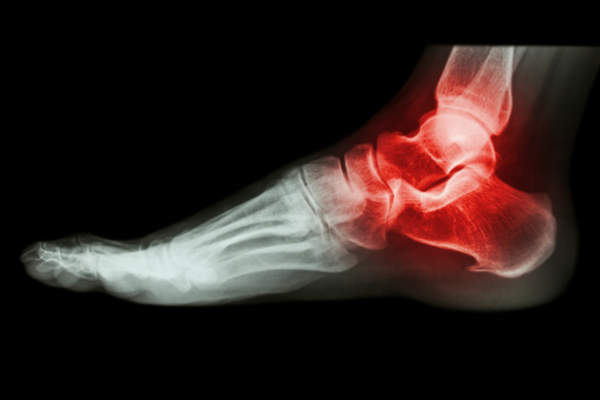 X-ray of foot joint.