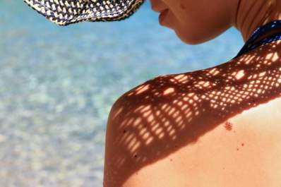 Woman in sun with mole on her shoulder