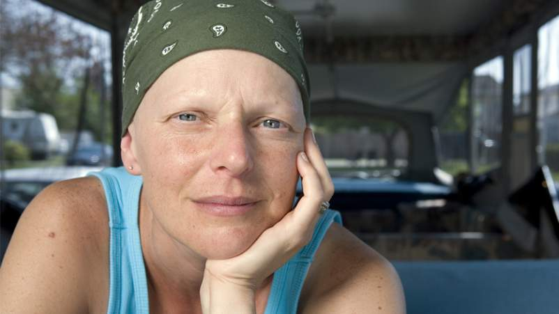 Woman wearing scarf on head with hair loss due to chemotherapy.