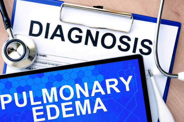 pulmonary edema diagnosis image