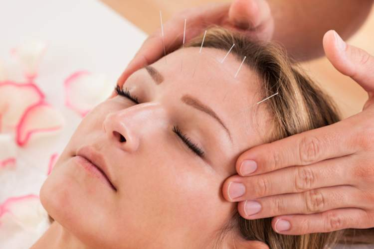 acupuncture for migraine