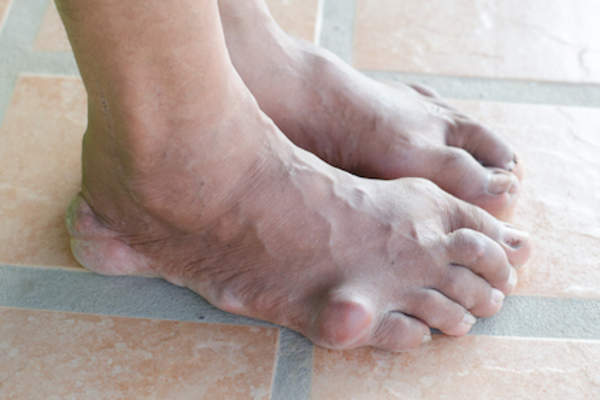 Mans foot with gout