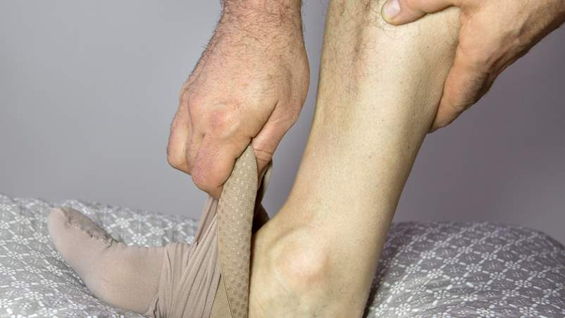 Man putting on compression stocking.
