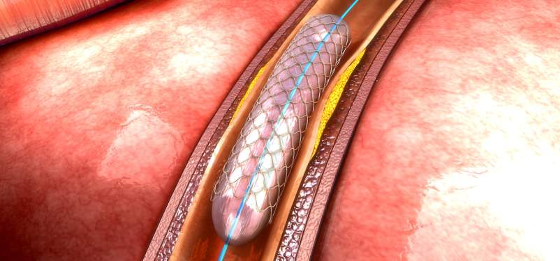 Angioplasty With Stenting