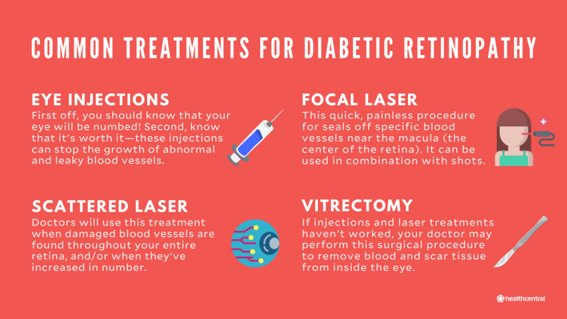 Common treatments for diabetic retinopathy include eye injections, focal laser, scattered laser, and virectomy