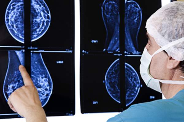 Doctor looking at breast MRI.