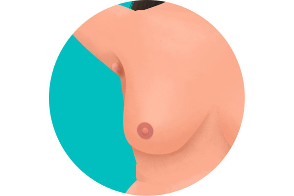 Illustration of lump in armpit
