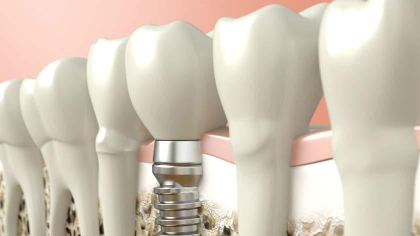 avoiding dental implant complications