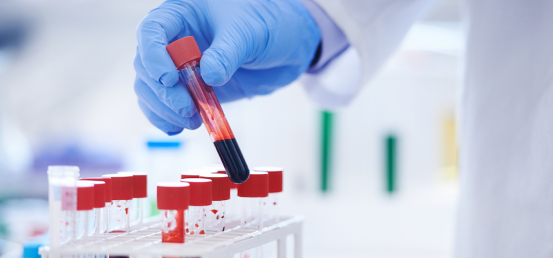 Low Back Pain: Blood Test May Help Diagnosis