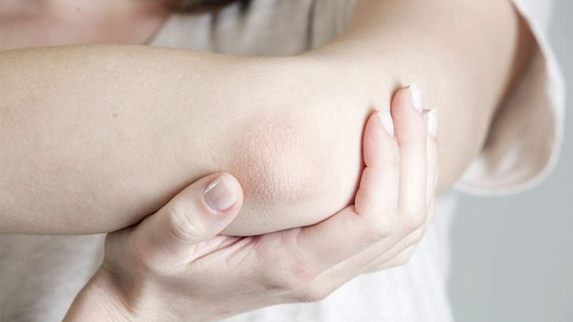 Psoriasis on elbow.