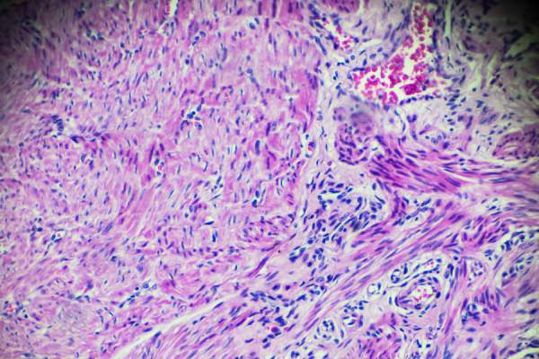Carcinoma of endometrium bio sample under microscope
