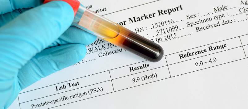 prostate cancer test