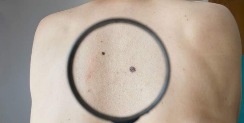 mole on person's back under magnifying glass