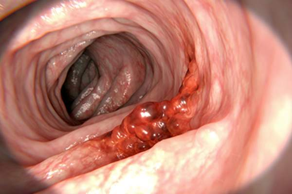 Colon cancer, colon lining.