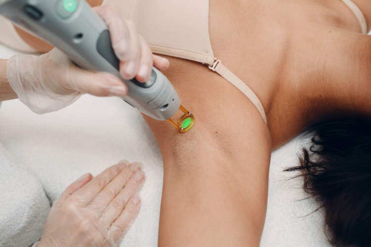 woman getting laser hair removal on underarm