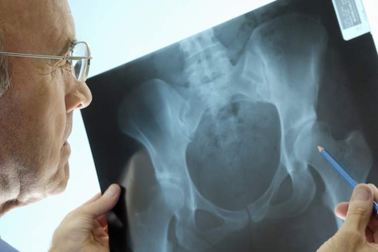 Women With Lung Disorders at Higher Osteoporosis Risk