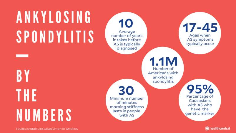 Ankylosing spondylitis statistics: average number of years before AS is diagnosed, age when AS symptoms occur, number of Americans with AS, number of minutes that AS morning stiffness lasts for, percentage of caucasians with AS who have the genetic marker