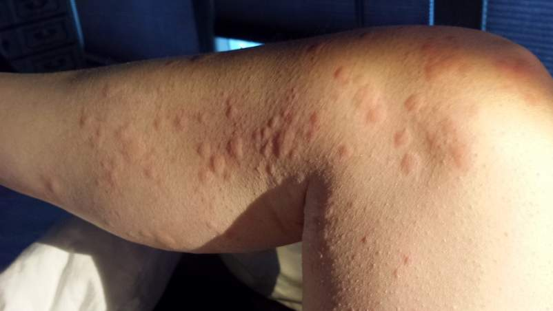 Chronic Hives Stigma: How to Heal