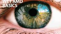 Wet AMD Basics