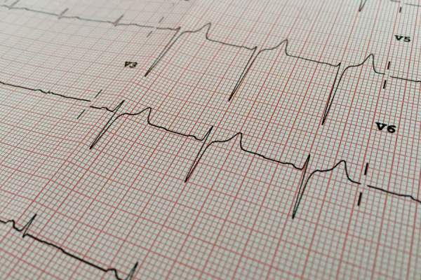 ekg results on paper