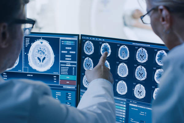 Doctors looking over brain imaging test results
