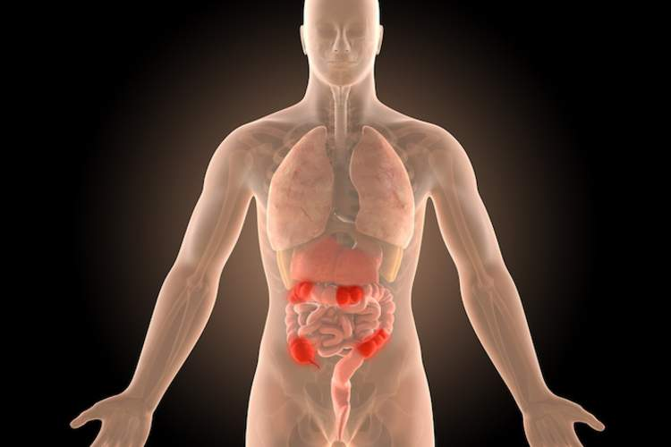 3D male model with crohn's infection sites highlighted