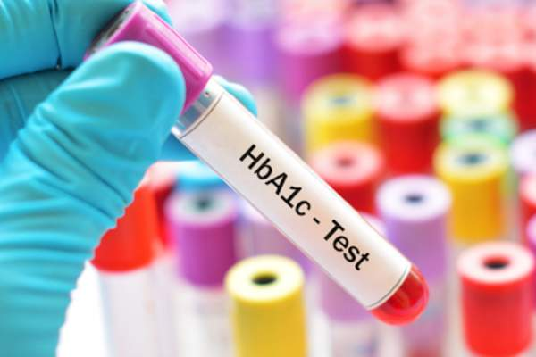 HbA1c blood test viles