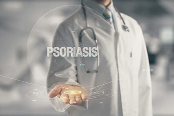 Dermatologist presenting psoriasis diagnosis concept.