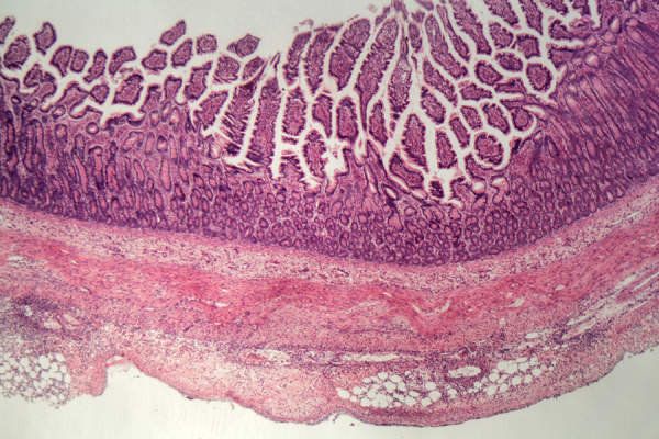 Microscope photo of a human large intestine section with inflammation