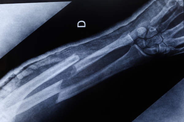 X-ray of severely fractured forearm.