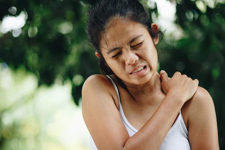 Woman scratching hives on her shoulder.