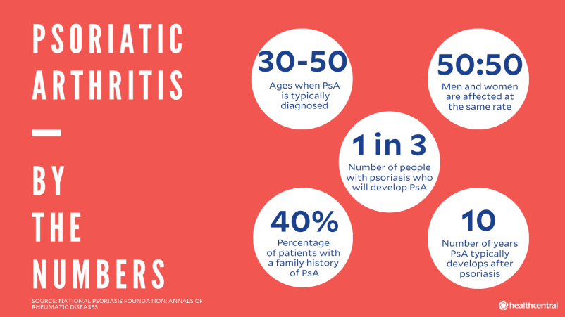 Psoriatic arthritis statistics: ages when PsA is diagnosed, PsA affects men and women equally, number of people with psoriasis who will develop PsA, percentage of patients with family history of PsA, number of years PsA develops after psoriasis