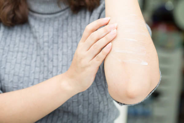 woman putting lotion on elbow