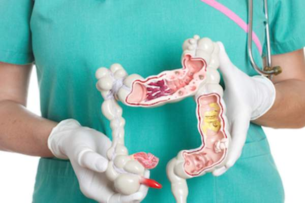 Doctor with model of colon