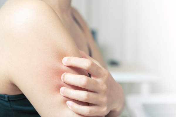 woman scratching arm and shoulder