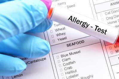 Food allergy test.