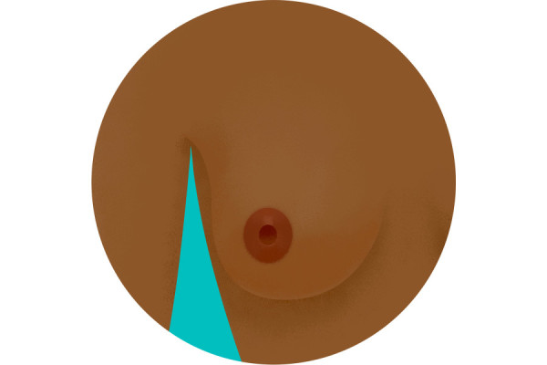 Illustration of nipple inversion
