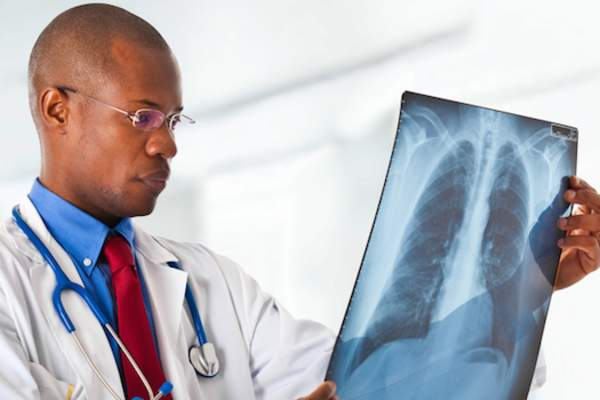 Oncologist examining lung x-ray