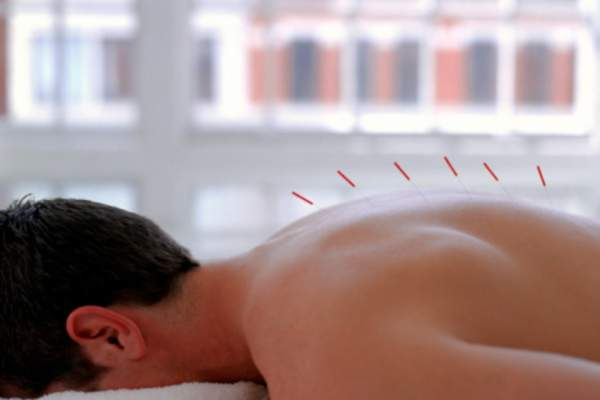 A man receives acupuncture treatment for pain.