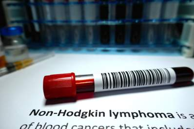 Blood test for non-hodgkin lymphoma