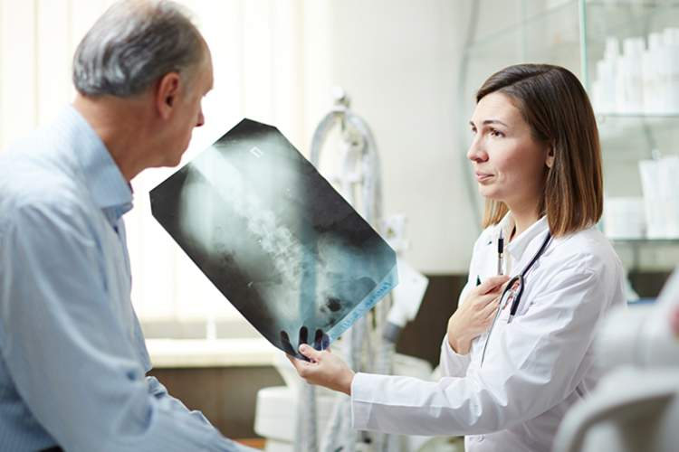 Doctor showing a lung x-ray to a senior patient.